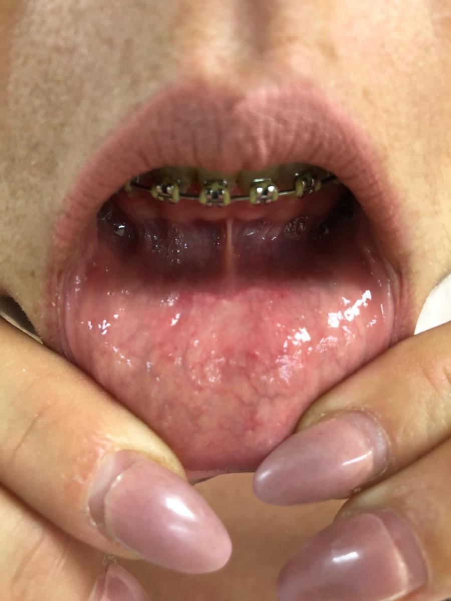 Berenice Ramos Santana, 34 años, Cirugía tiroidea por la boca (TOETVA) SIN CICATRIZ