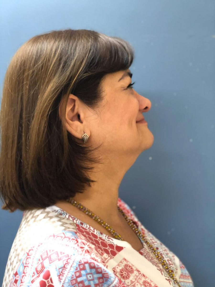 Gilda Chavez , paciente tratada de tiroidectomía total por la boca SIN CICATRIZ